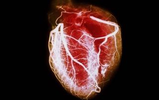 PRinc_rm_arteriogram_of_healthy_heart